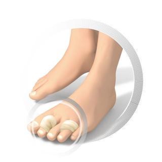 Ruck volna (jagnjena) - medicinska - Zmanjševanje pritiska na nogah