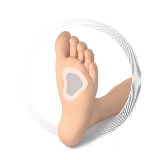 Ruck blazinica za spločena stopala - 3 - Zmanjševanje pritiska na nogah