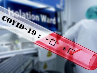 Število okužb se še povečuje. (Foto: Pixabay)